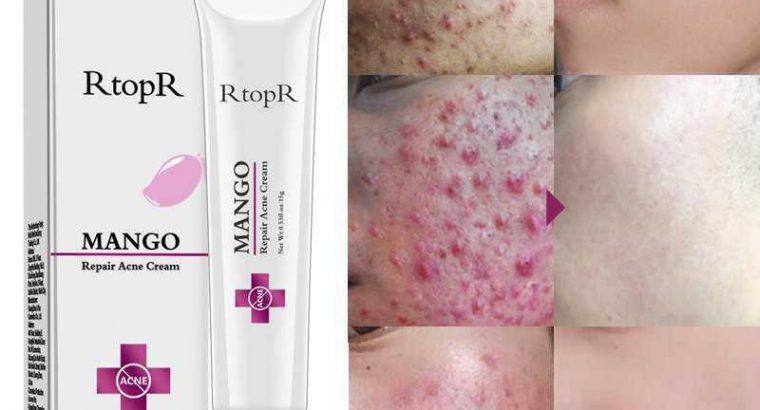 Repair Acne Cream